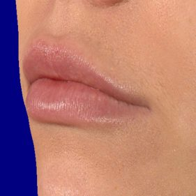Lip fillers after treatment