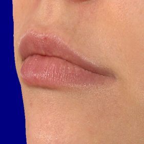 Lip fillers before treatment